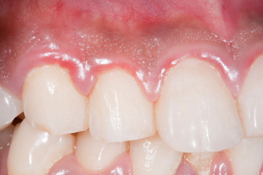 what is gingivitis? gingivitis symptoms and treatment, Skeleton