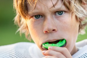 Protective Mouth Guards for Athletes
